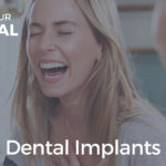 Dental Implants: Benefits of Tooth Replacement for Patients