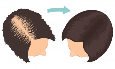 How to Find Best Dermatologist for Hair Loss?