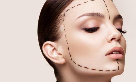 10 Questions to Ask Before Having Plastic Surgery